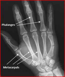 fifth metacarpal fracture