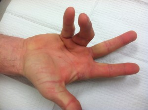 Dupuytrens Contracture Treatment by Dr Erickson in Raleigh