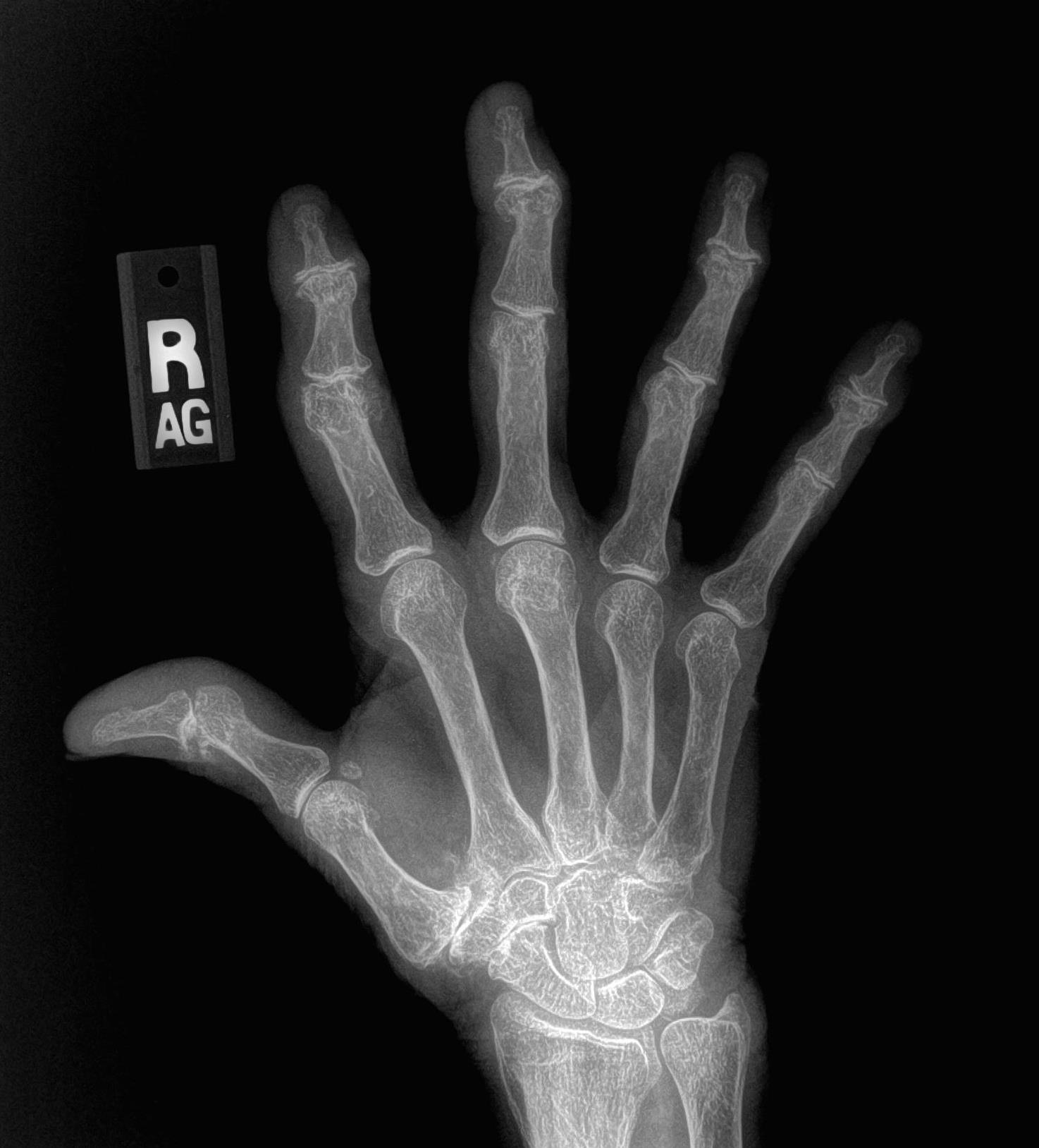 What does arthritis look like on x-rays? - John Erickson, MD