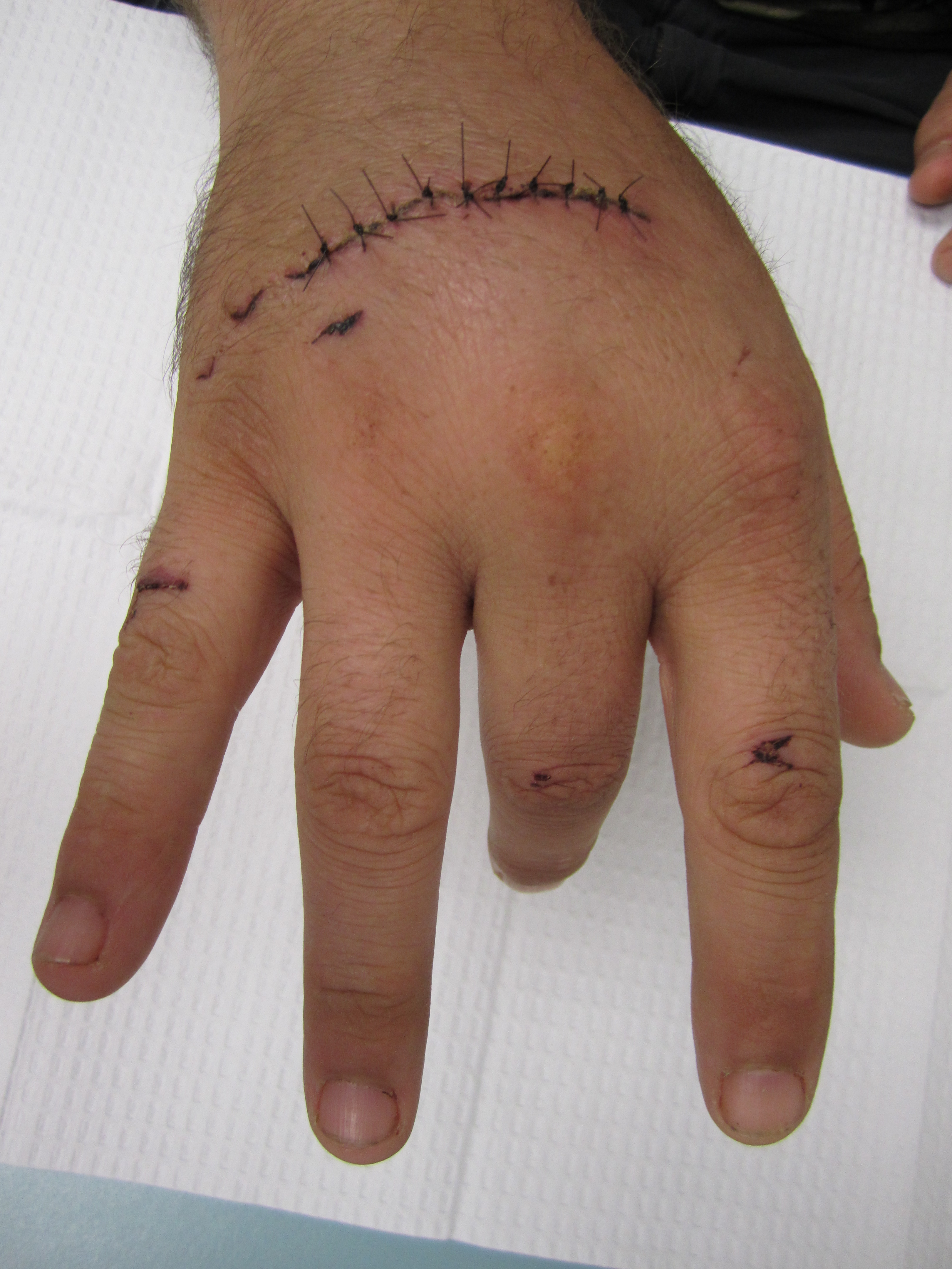 Extensor Tendon Injury In Hand
