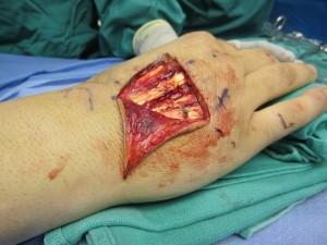 extensor tendon laceration3
