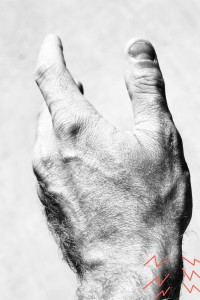 DeQuervains tendonitis