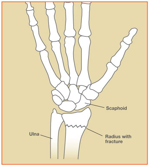 Wrist Fracture Treatment in Raleigh - John Erickson, MD