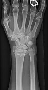 distal radius fracture 1