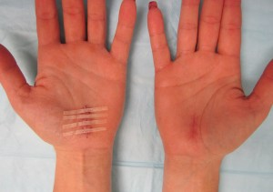 carpal tunnel incision