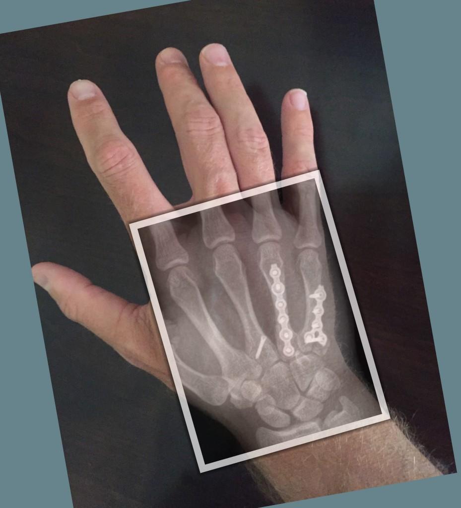 Metacarpal Fracture ORIF