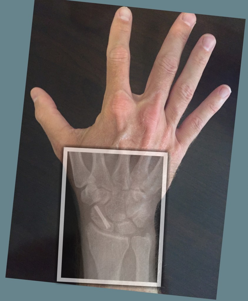 Scaphoid Fracture ORIF