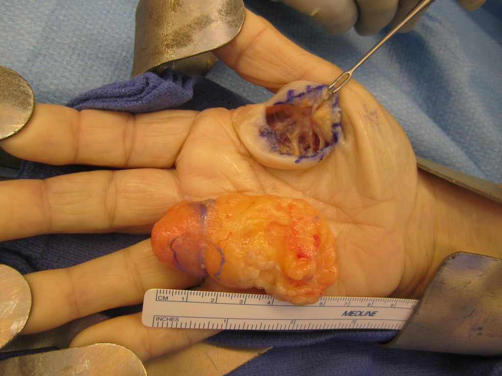 Lipoma in Palm of Hand