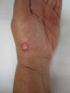 squamous cell carcinoma at base of thumb