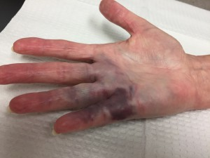 Major bruising after Xiaflex