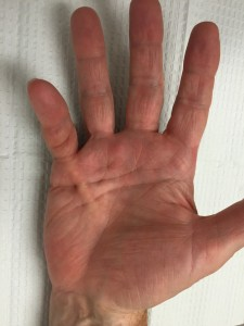 Dupuytrens contracture in small finger