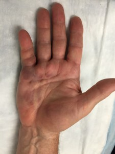 Mild bruising after Xiaflex