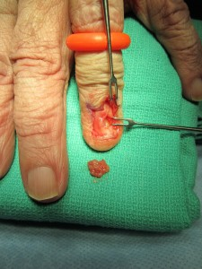 glomus tumor under fingernail