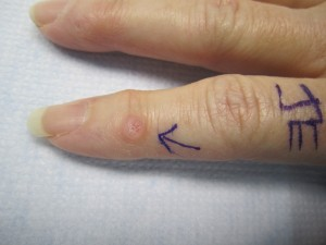 mucous cyst in finger