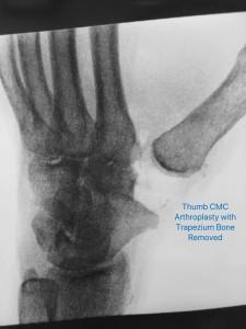 ThumbCMCArthroplasty