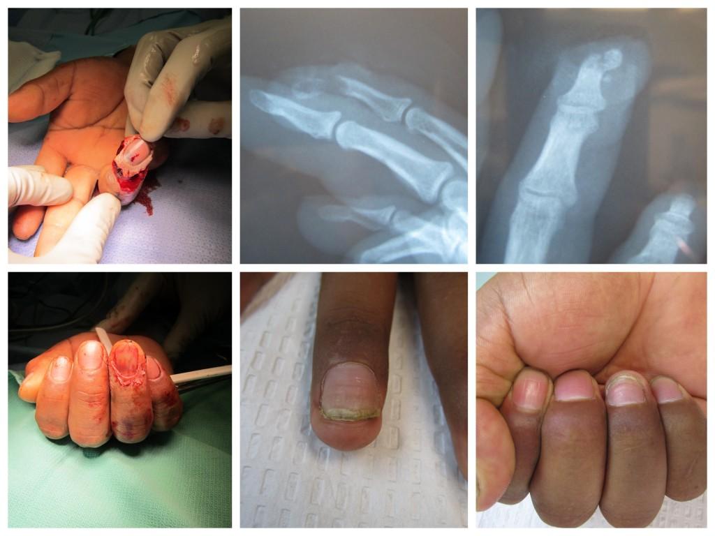 Partial Fingertip Amputation