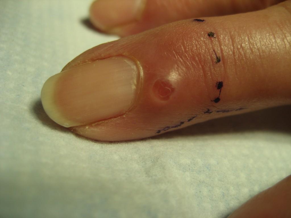 mucous cyst 3