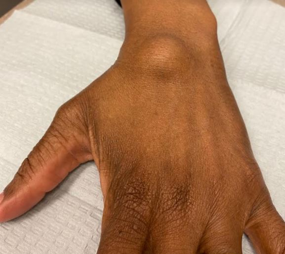 Home remedies for ganglion cyst on wrist